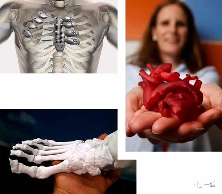 3D打印器官